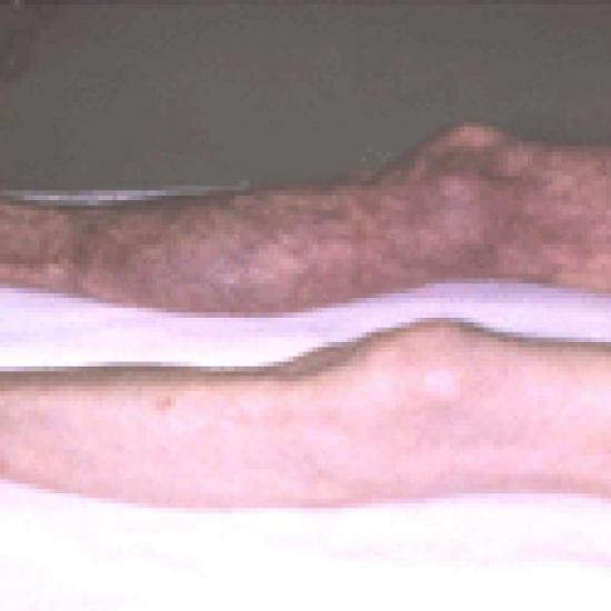Embolie de la jambe